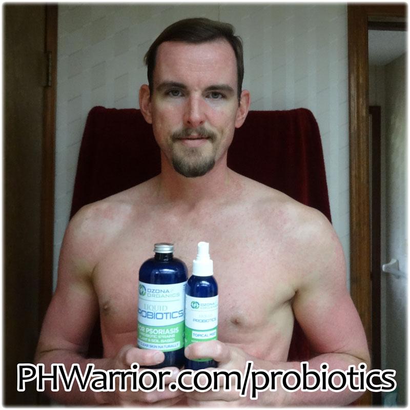 Probiotics Video